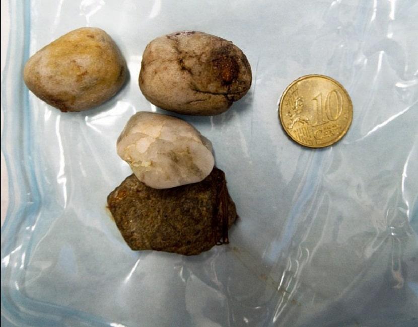 piedras y una moneda que se ha encontrado en el estomago de un perro
